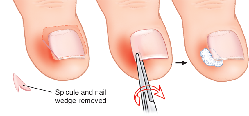 Ingrown toe nails • Adelaide Chiropody and Podiatry